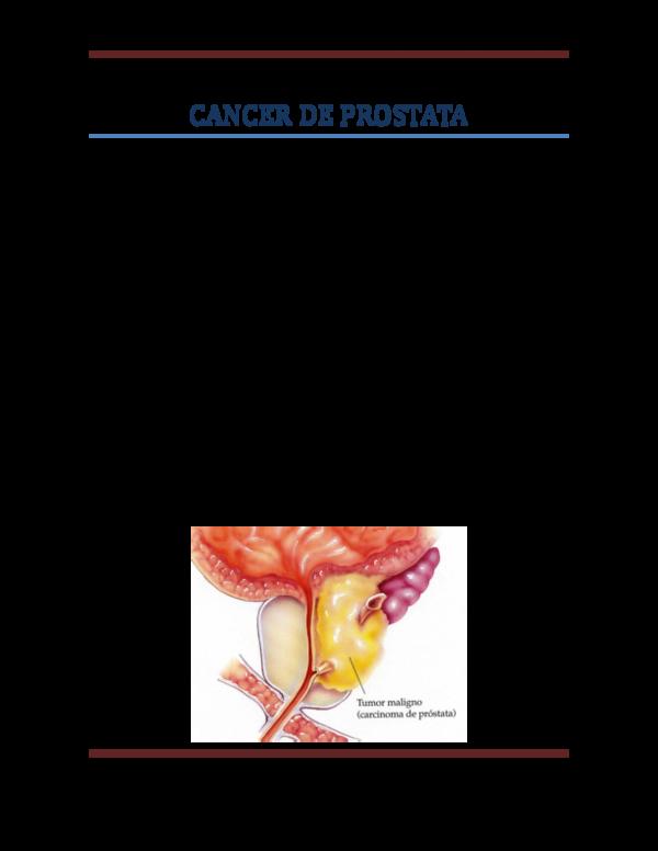 cancer de prostata 2