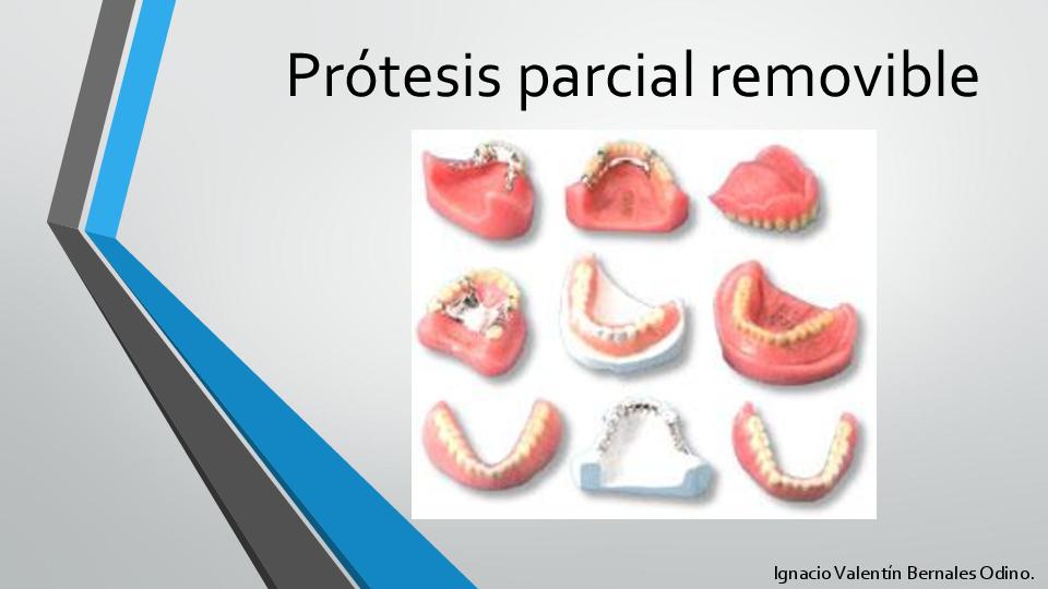 tipos de ganchos protesis parcial removible