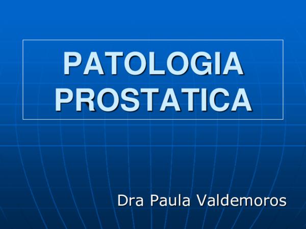 hiperplasia estromal de la próstata