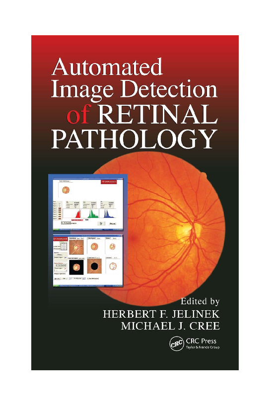 Pdf Automated Image Detection Of Retinal Pathology Neamah Enaad Academia Edu