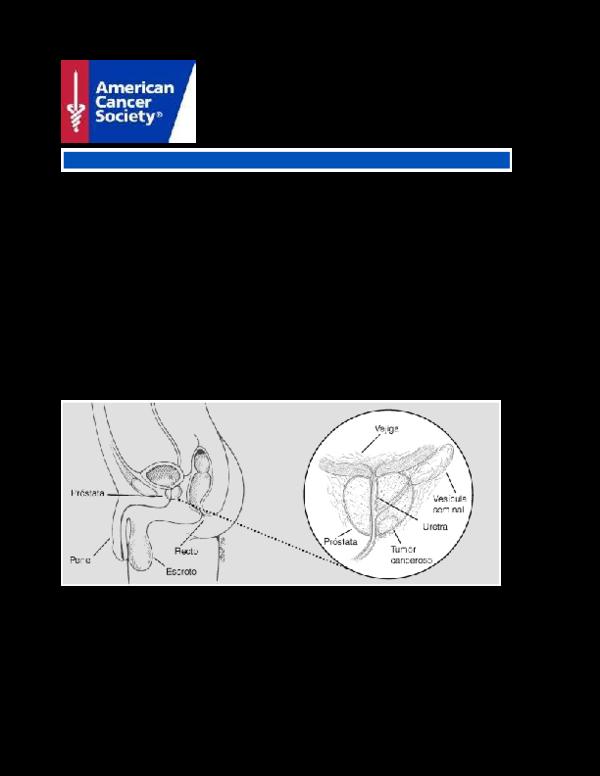 Resultados de la prueba de PSA después de la extracción de próstata