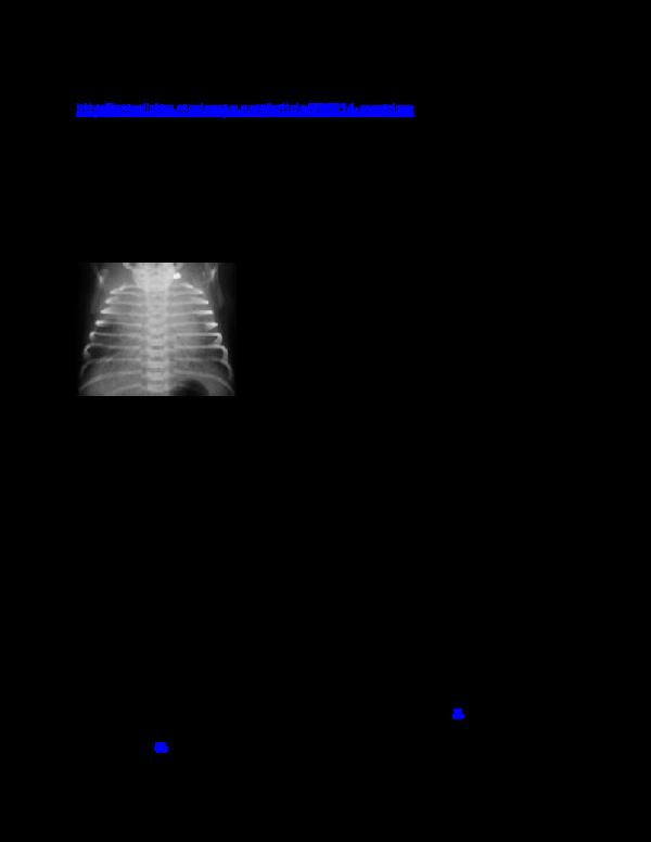 DOC) TRANSIENT TACHYPNEA OF NEWBORN | stelling dasmar