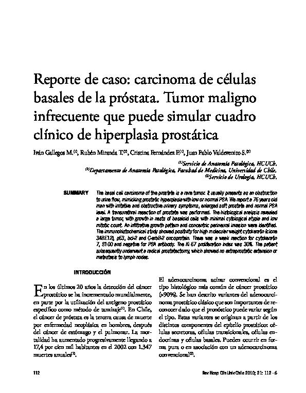 neoplasia de próstata pdf