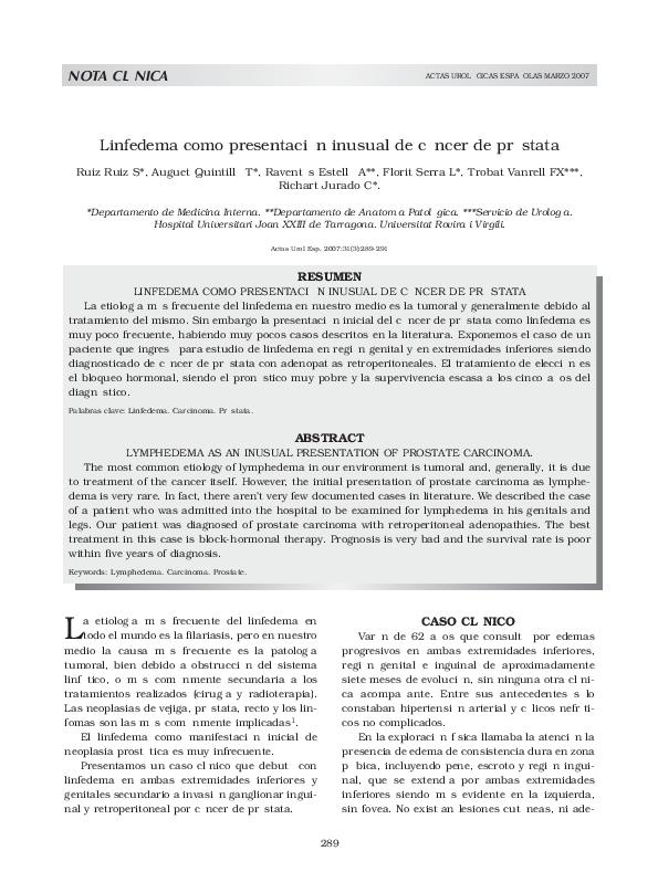 ganglios linfáticos inguinales cáncer de próstata