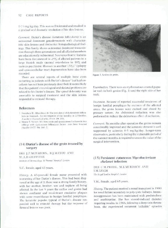 PDF) (15) Persistent cutaneous Mycobacterium chelonei
