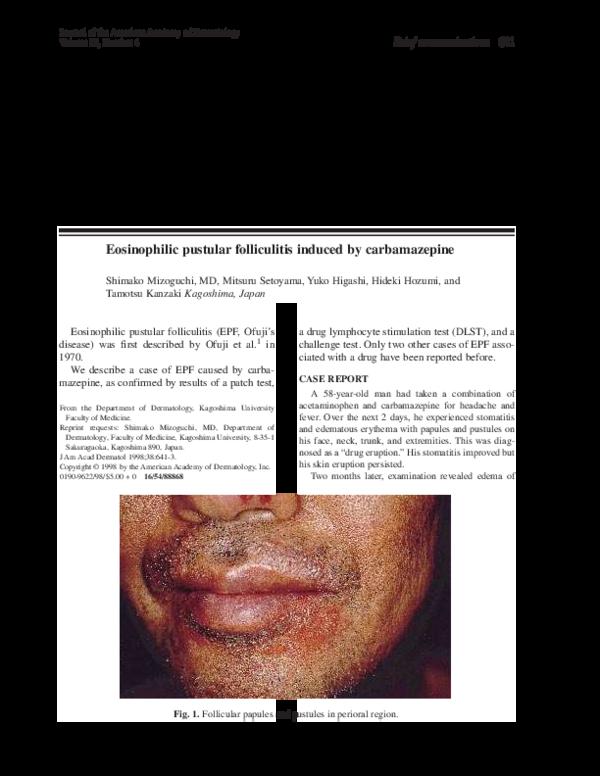Pdf Eosinophilic Pustular Folliculitis Induced By