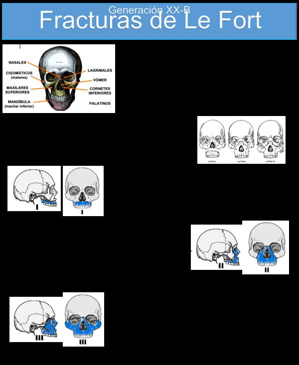 Fracturas de maxilar inferior pdf merge