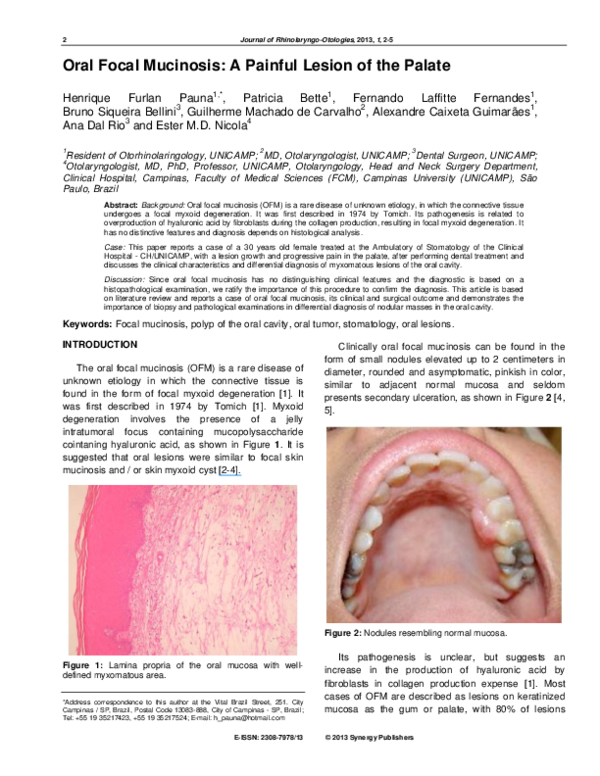 PDF) Oral Focal Mucinosis: A Painful Lesion of the Palate