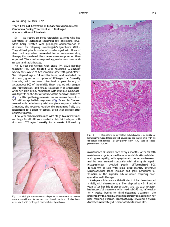 PDF) Three Cases of Activation of Cutaneous Squamous-cell