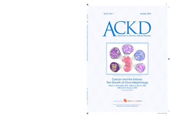 ¿Qué es un adenocarcinoma de próstata pt3 pnib pm g2 virus?