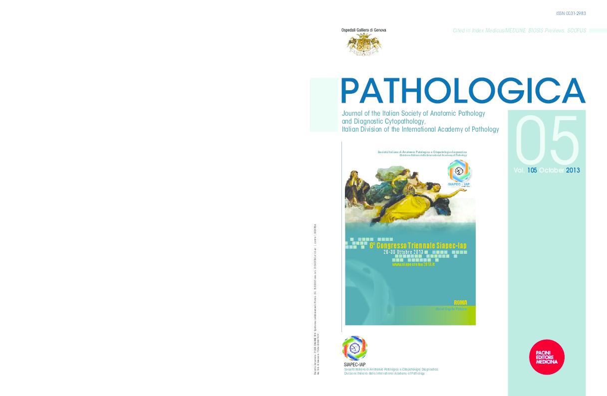 tumore prostata e sessualità spiegato ai pazienti ppt pdf