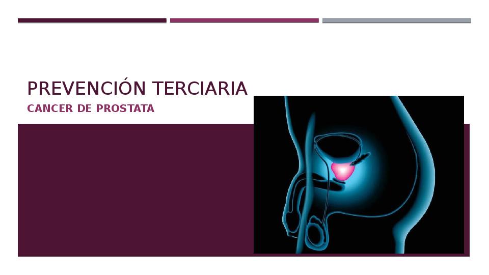 vigilancia activa en cáncer de próstata ppt 2
