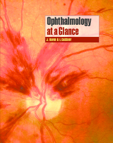 Pdf Ophthalmology At A Glance Andi Inno Academia Edu border=