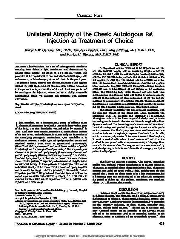 PDF) Unilateral Atrophy of the Cheek | Timothy Douglas