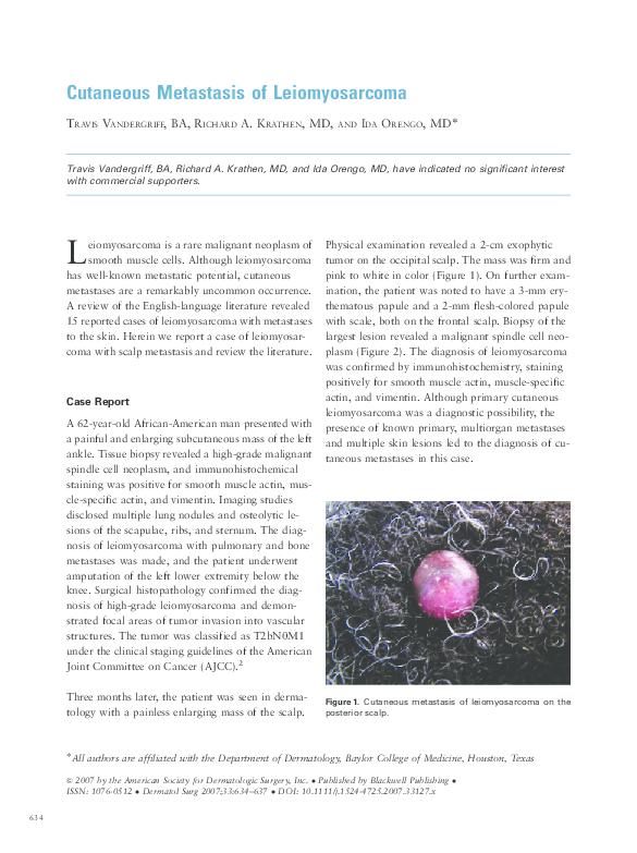 PDF) Cutaneous Metastasis of Leiomyosarcoma | Richard Krathen and