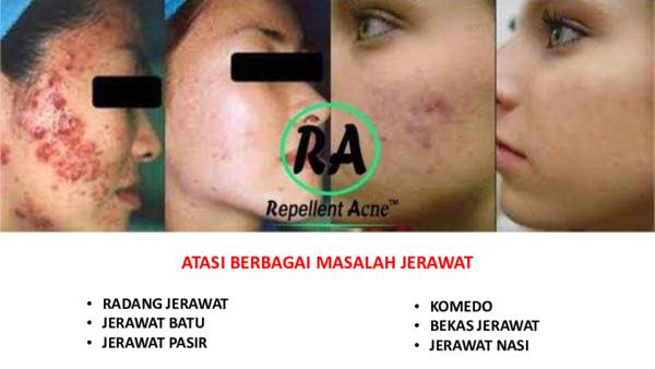 Jerawat Pasir Di Pipi Research Papers Academia Edu