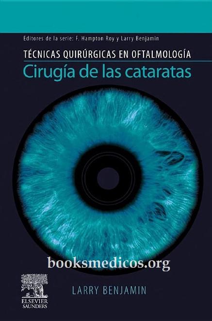 277bde3493 PDF) Cirugia.de.las.cataratas.Tecnicas   Marta Lazo Cortez ...