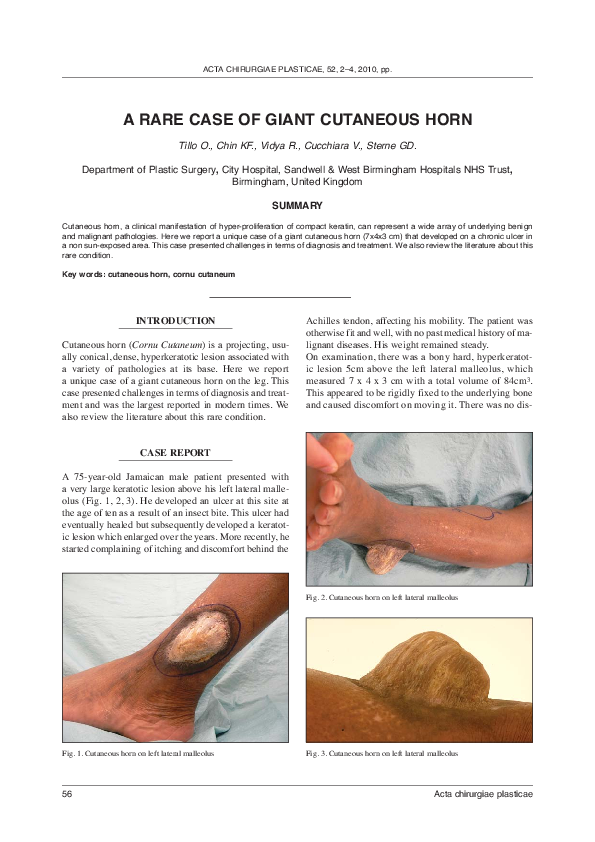 PDF) A rare case of giant cutaneous horn   O  Tillo and R