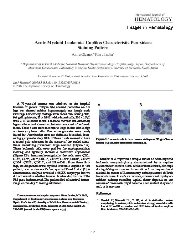 PDF) Acute myeloid leukemia-cuplike: characteristic