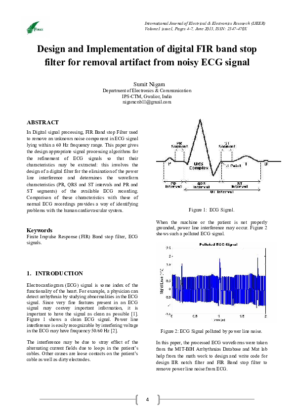 PDF) Design and Implementation of digital FIR band stop filter for
