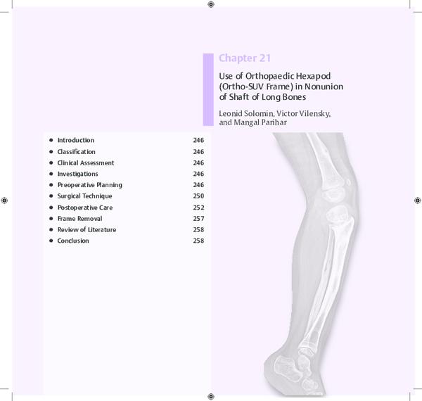 PDF) Use of Orthopaedic Hexapod (Ortho-SUV Frame) in