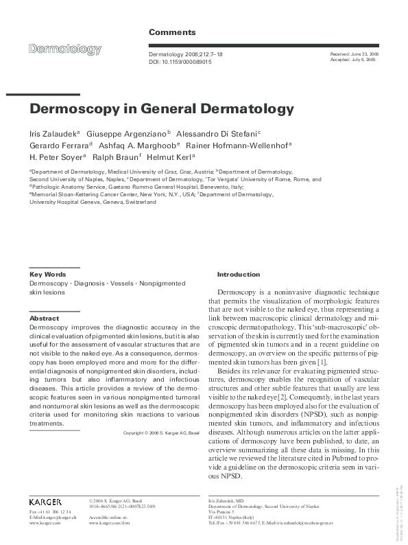 PDF) Dermoscopy in General Dermatology | Giuseppe Argenziano