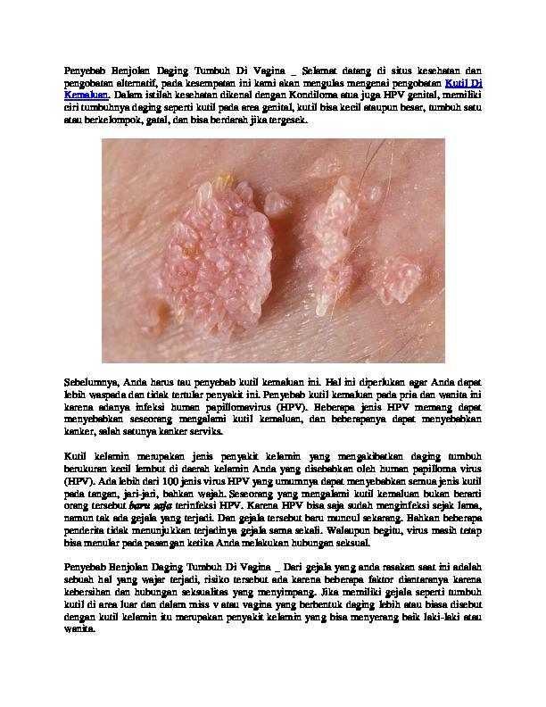 papilloma vírus 16. szint