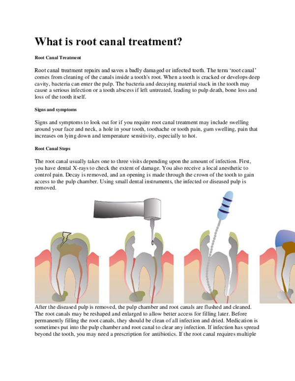 DOC) What is root canal treatment? Root Canal Treatment
