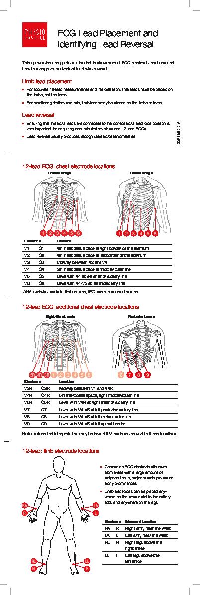 Pdf Ecg Lead Placement And Lead Reversal Guide Pdf Pigur Marwanto Academia Edu