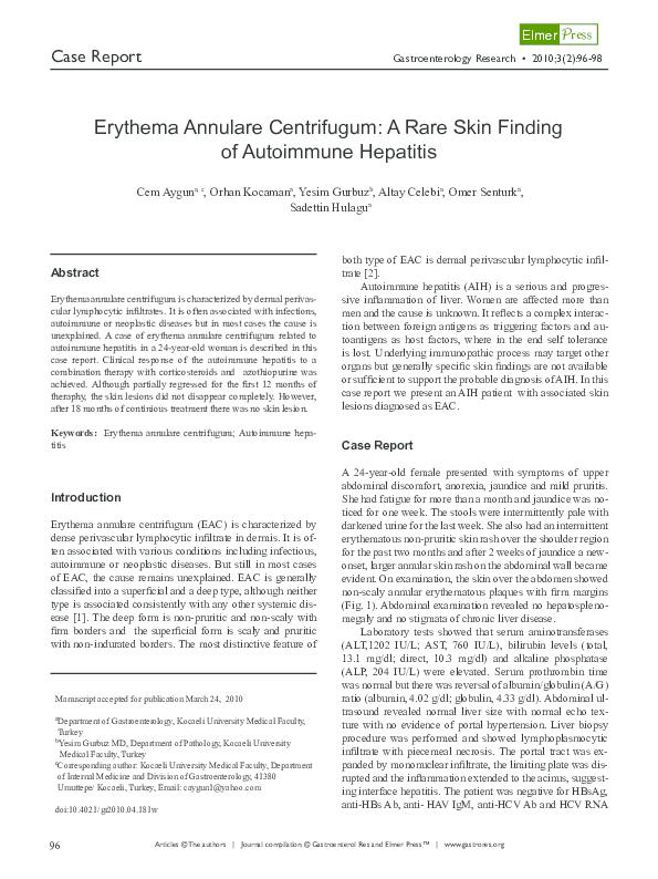 PDF) Erythema Annulare Centrifugum: A Rare Skin Finding of